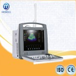 Medical 3D Obstetrics Use Me Noise Reduction Adjustable High-Resolution LCD 6018p Portable Color Doppler