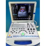 Cw Echo Medical Product Cardiac Scanner Portable Ultrasound