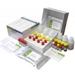 Rheumatoid Arthritis Anti-CCP Detection Kit (ELISA)