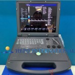 PC Based Portable Color Doppler Digital Ultrasound