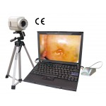 DP-9800 Digital Imaging System video inspecting system colposcope price